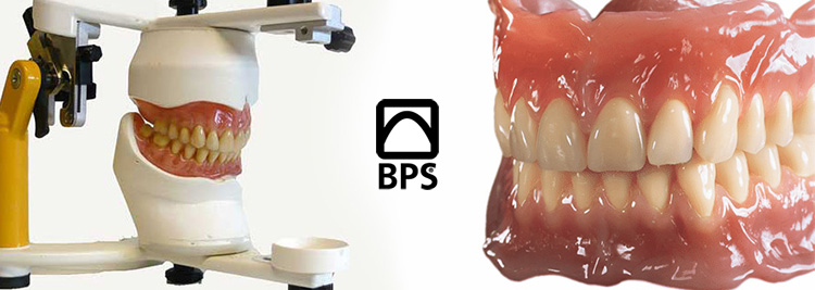 Suction Effective Mandibular Complete Denture, or in very simple terms it is a Suction Lower Denture.